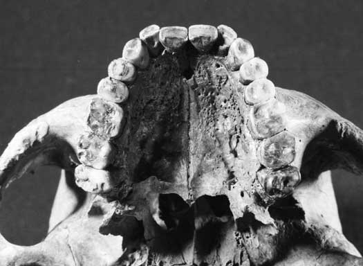 Dental health in the Mesolithic period